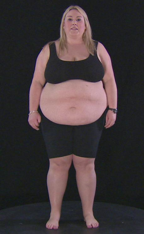 Fat The Fight of Their Lives, Obese a Year to save my life, Jessie Pavelka, Valentine Rawat, Sarah Le Brocq